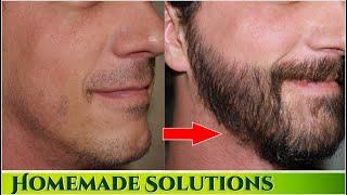 घनी दाढ़ी और मूंछ उगाने के सबसे असरदार उपाय   Fix  Patchy Beard Permanently in 7 days & Grow Faster thumbnail