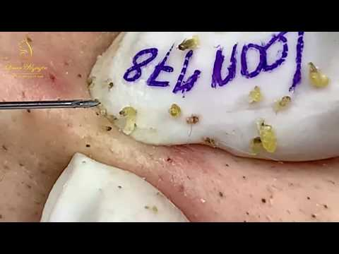 Relax With Blackhead Extract And Music (178) | Loan Nguyen