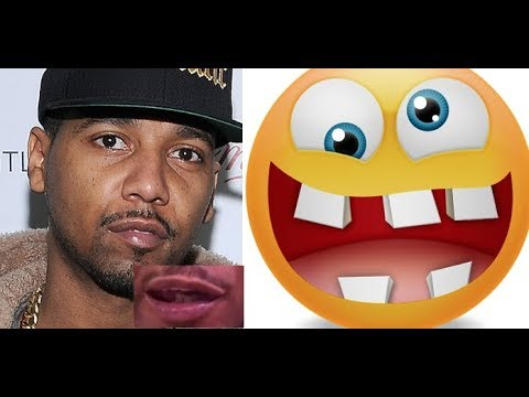Juelz Santana TEETH are Missing IN ACTION in New Dipset Video (allegedly) INTERNET REACTS