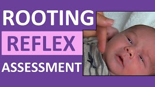 Rooting Reflex In Newborn Infant Baby   Pediatric Nursing Assessment