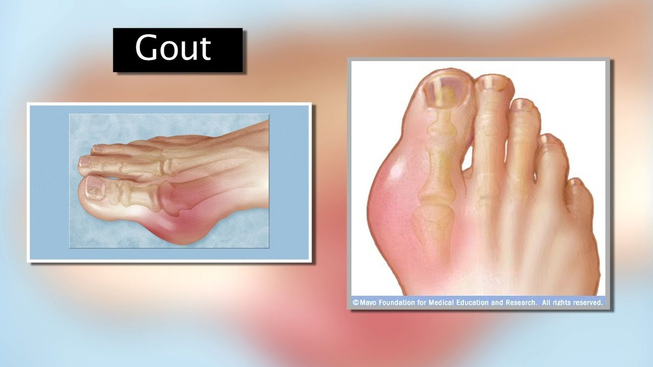 Gout - Mayo Clinic