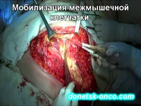 метод лигирования геморроя в клиниках украины