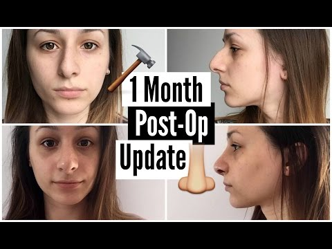 1 Month Post-Op Nose Job Update • itsbinkybee - YouTube