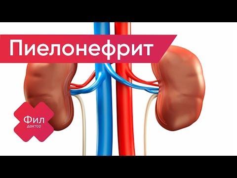ПИЕЛОНЕФРИТ Лечение | Как лечить пиелонефрит почек дома | Симптомы пиелонефрита | Болит поясница