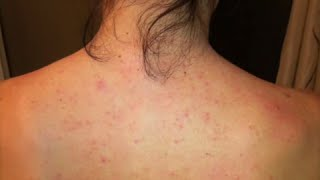"Dayna's Story: Improvement with Folliculitis or ""Back Acne"""