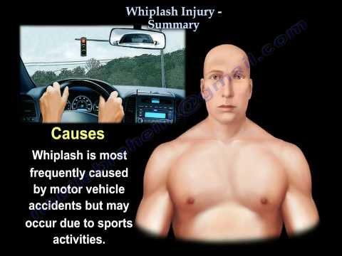 Whiplash Injury, neck pain, Summary Everything You Need To Know Dr. Nabil Ebraheim