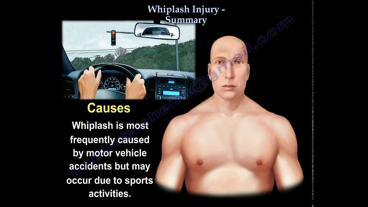 Whiplash Injury Neck Pain Summary Everything You Need To Know