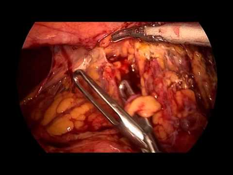 Laparoscopic Hartmann sigmoidectomy for acute diverticulitis & colon obstruction Dr S. Di Saverio