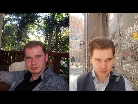 what-happens-when-you-stop-minoxidil:-from-my-experince