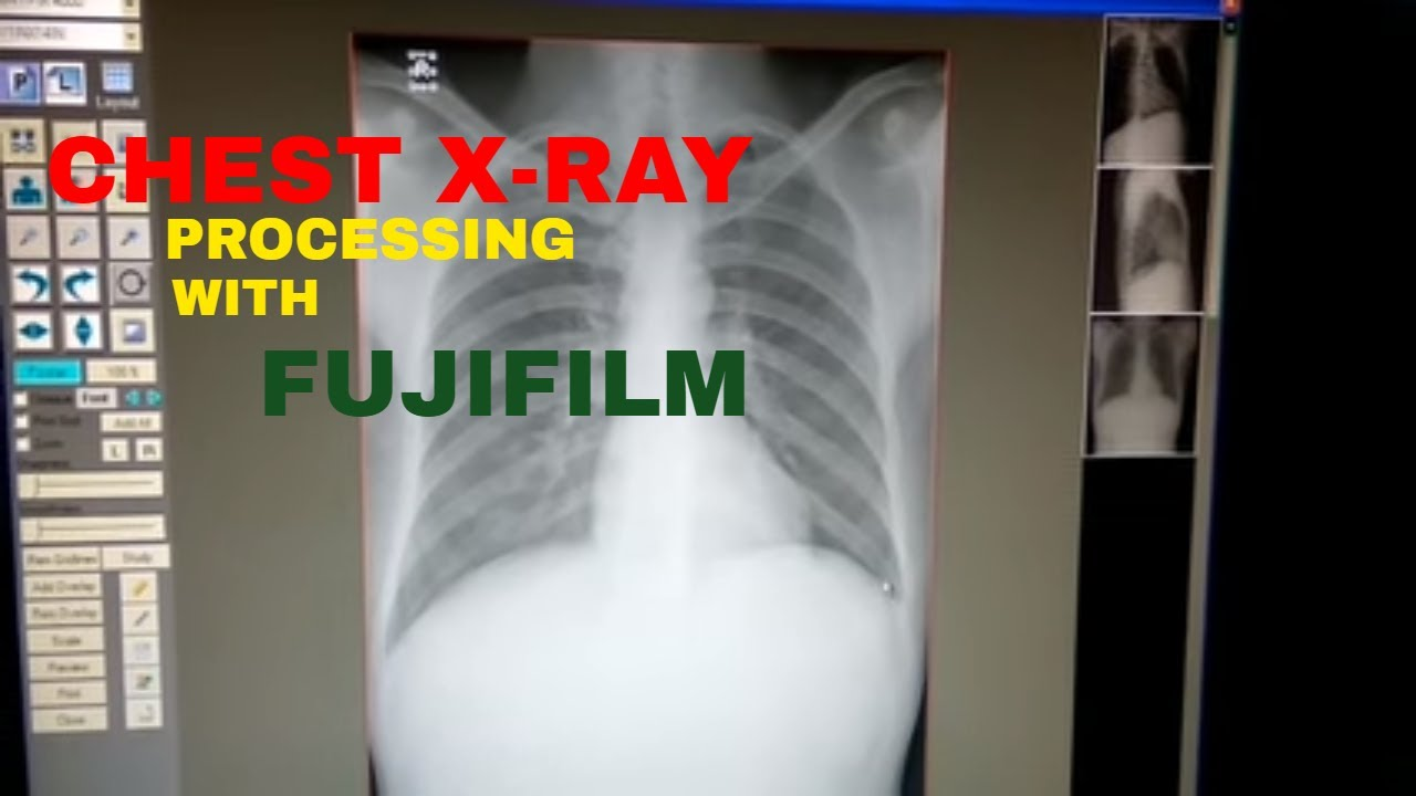 How To Do Chest X Ray Anatomy And Physiology Part 8 Youtube