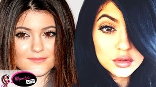 Kylie Jenner Before & After: Plastic Surgery?