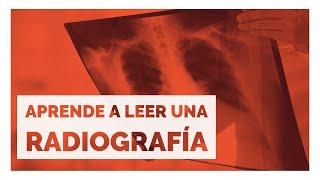 Tórax de prominentes vasos radiografía