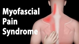 mqdefault - Myofascial Upper Back Pain Syndrome
