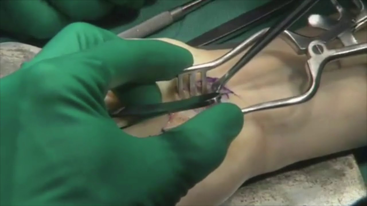 Carpal Tunnel Release Surgical Procedure Part Ii Youtube