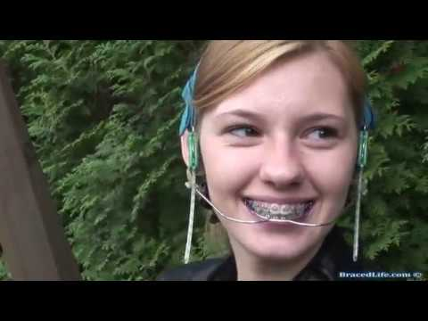 Orthodontic Headgear - YouTube