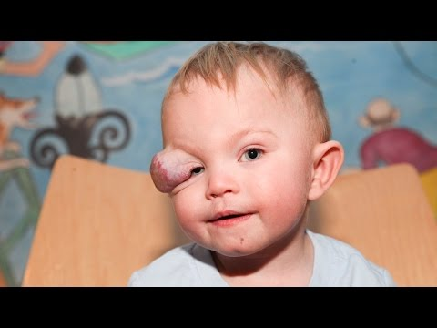 Brave Toddler Has Sight-Saving Surgery On Tumour