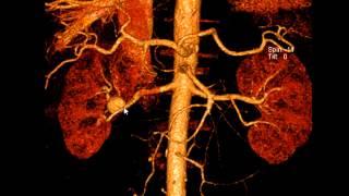 КТ ангиография при аневризме почечной артерии(, 2013-01-25T21:18:53.000Z)