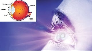 Eye Flashes, What Causes Floaters In The Eye, Floaters Cure, What Causes Floaters In Eyes
