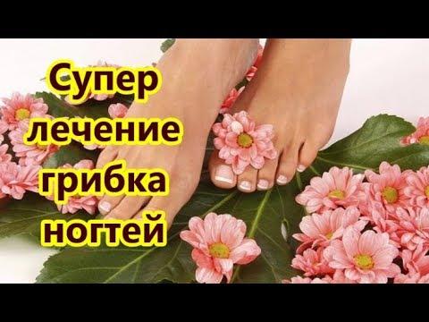 Грибок ногтей исчезнет навсегда. Лечение грибка народным средством.