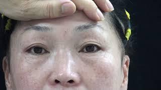 Full Facial Rejuvenation Surgery in Korea 전체 얼굴거상술