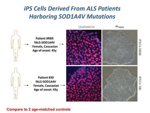 Probing Disease Mechanisms In ALS Using IPSCs, Reprogramming And Optogenetic Approaches