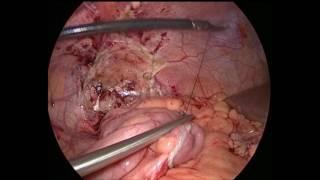 Клинический случай пациента Ч  Лапароскопическое закрытие илеостомы