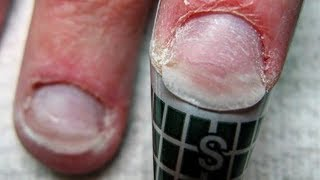 NAIL TUTORIAL HOW TO FIX NAIL PLATE💅 MANICURE BEAUTY NAIL AND NEW NAIL ART FOR GEL NAILS AT HOME