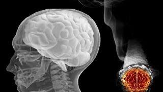 Dolor muscular causa fumar