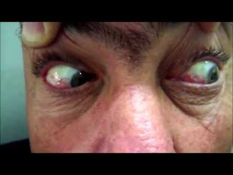 Right Diabetic Vascular Abducens Palsy