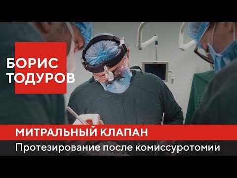 Борис Тодуров | Протезирование митрального клапана после комиссуротомии | Институт сердца