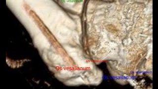 Os vesalianum at 5th metatarsal 2