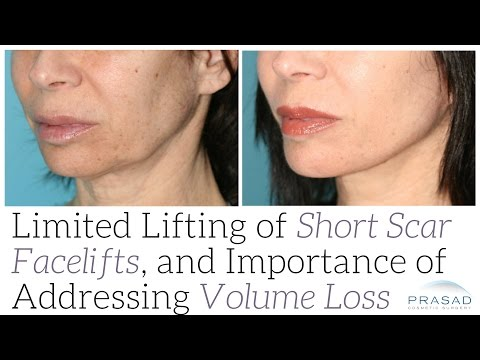 Limitations of Short Incision Facelifts, and Why Addressing Volume Loss is Equally as Important