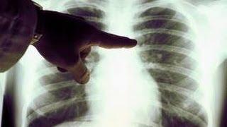 Rak płuc objawy