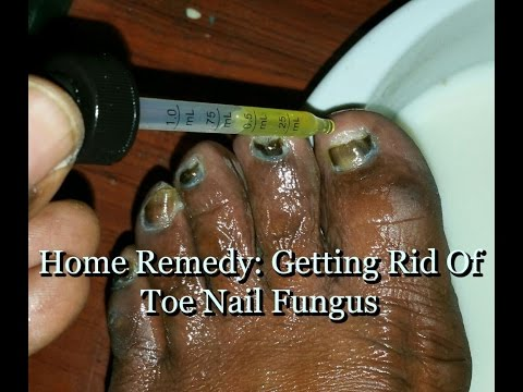 Home Remedy: How To Get Rid Of Toe Nail Fungus Pt. 1