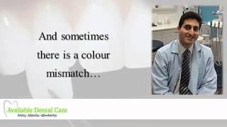 Dental Veneer Dentist Rosemeadow Thumbnail