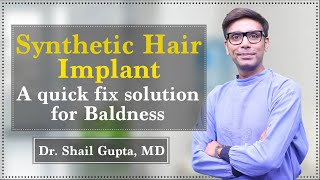 Synthetic Hair Implant: A quick fix solution for baldness