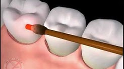 Clermont FL Dentist has FDA Cleared Laser for Periodontal Surgery and Gum Disease