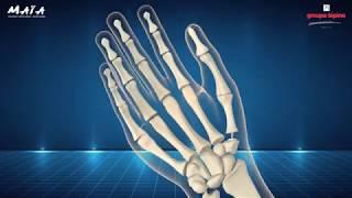 MAÏA™ trapezio-metacarpal joint prosthesis 3D animation