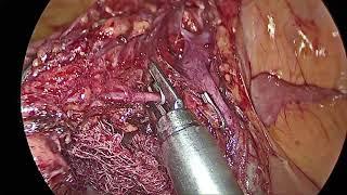 Laparoscopic Right Colectomy with D3 Limphadenectomy