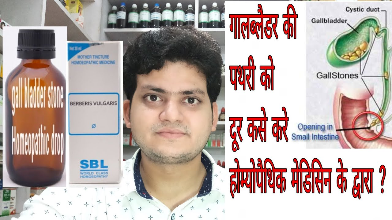 Gall Bladder Stone Homeopathic Medicine For Gall Bladder Stone Explain Youtube