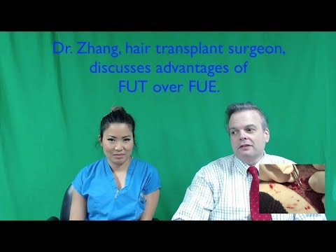 Dr. Jenny Zhang- Feller and Bloxham Hair Transplant- NY- NYC-CA-WA