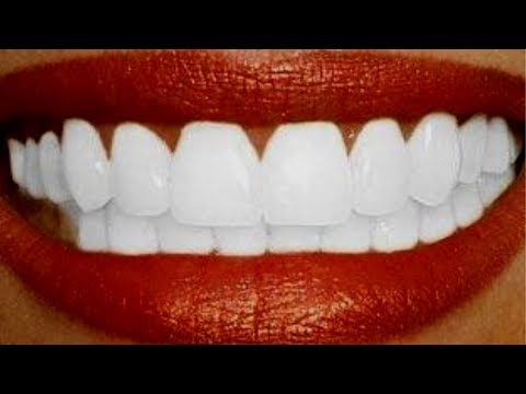 Blanchir les dents en 2 minutes,Teeth Whitening At Home In 2 Minutes