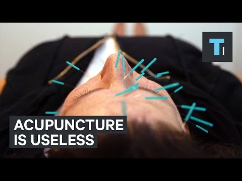 Acupuncture is useless