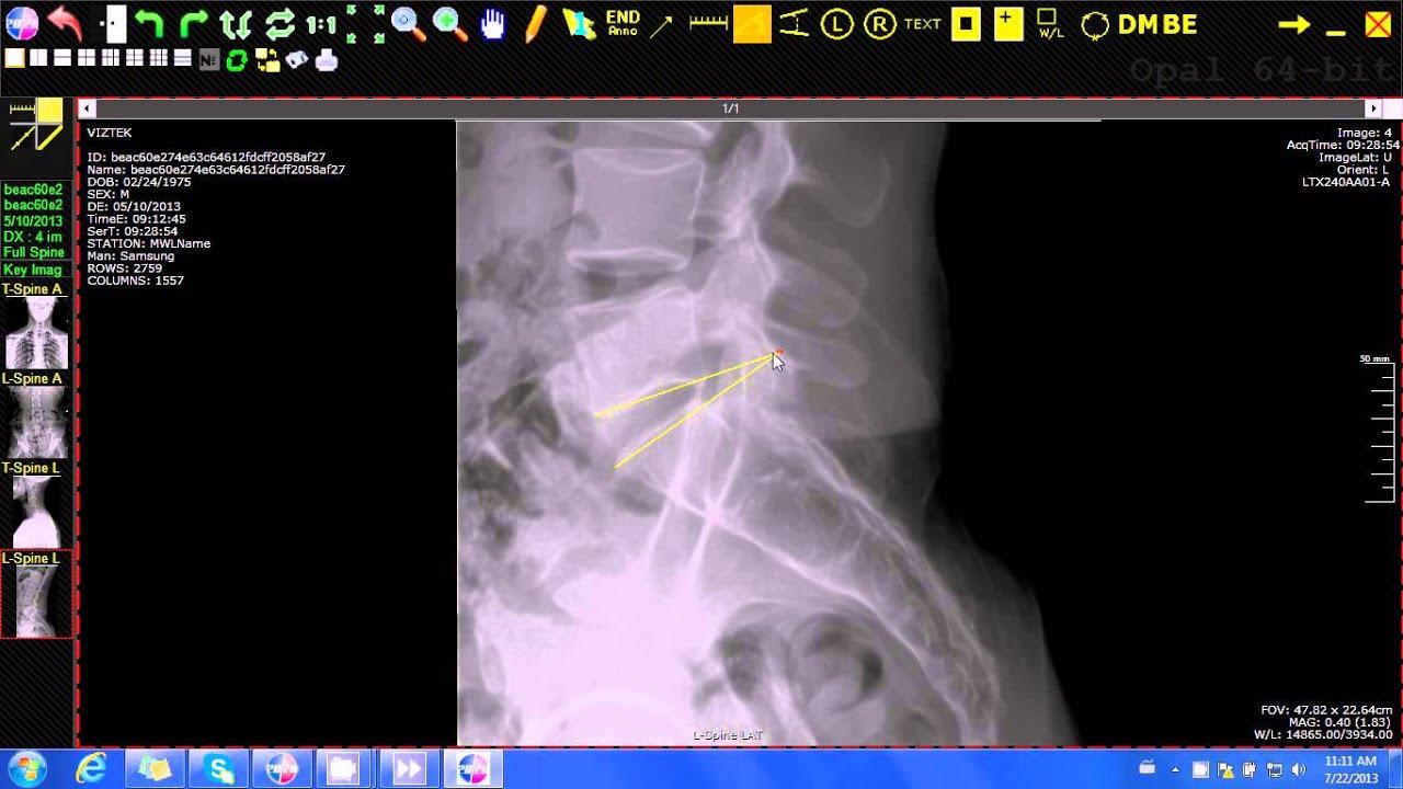 Viztek - 20/20 Imaging Opal-Rad (Chiropractic) Spine labels
