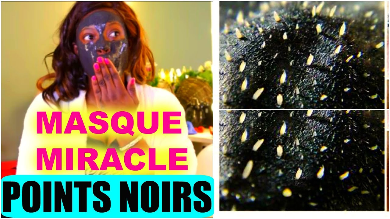 masque miracle diy contre les points noirs fait maison youtube. Black Bedroom Furniture Sets. Home Design Ideas