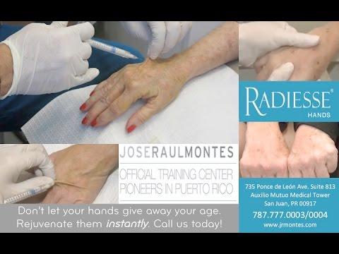 Radiesse® Manos - Dr. J.R. Montes