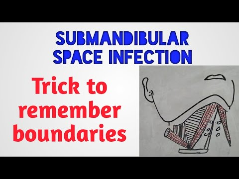 Submandibular Space Infection - Trick To Remember Boundaries