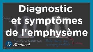 Emphysème: symptôme, distension thoracique, Tiffeneau et dosage de alpha 1 antitrypsine