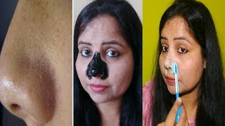 HOW TO REMOVE BLACKHEADS & WHITEHEADS~2 EASY & SIMPLE METHODS~ BLACKHEAD PEEL OFF MASK~ USE & REVIEW