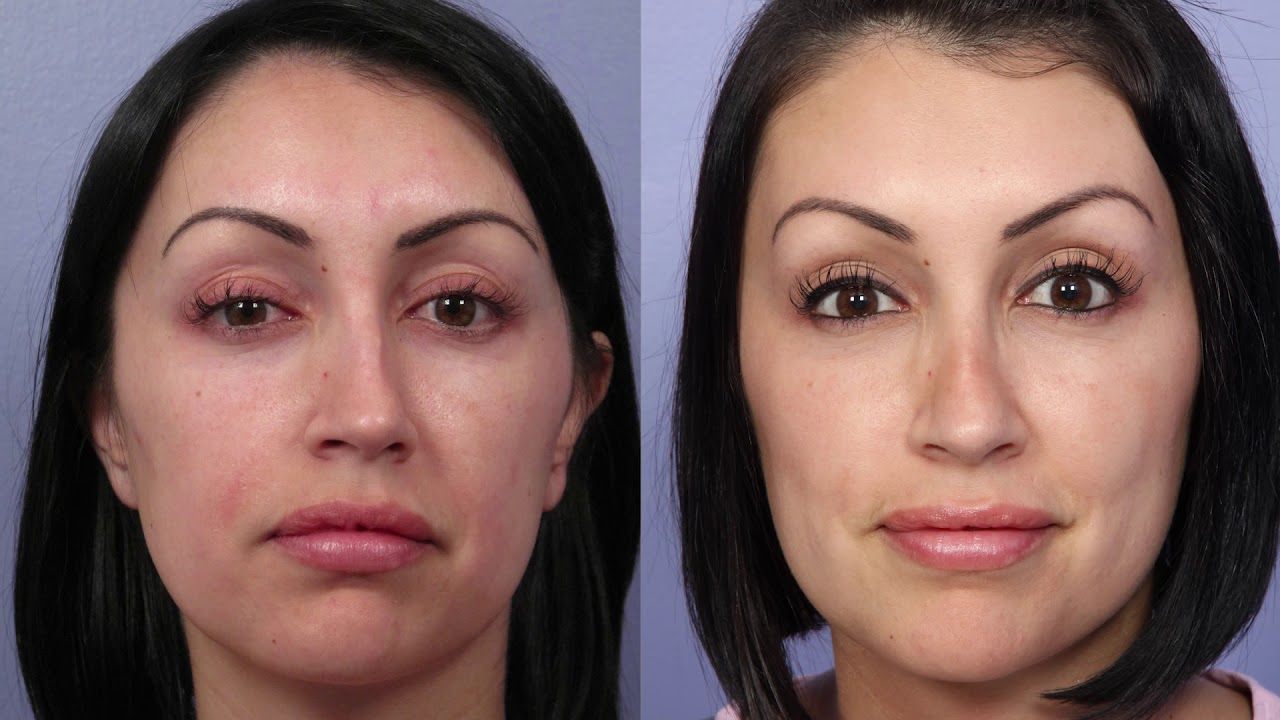 Septoplasty Los Angeles Nose Reshaping By Dr David Stoker